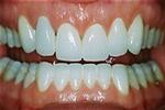 Veneers-to-Shape-Your-Smile-After-Image