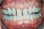 Veneers-to-Shape-Your-Smile-Before-Image