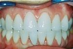 Veneers-for-Stained-Teeth-After-Image