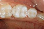 White-Dental-Onlays-After-Image