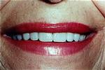 Veneers-to-Close-Gaps-After-Image