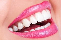 Atlanta Tooth Whitening Dentist